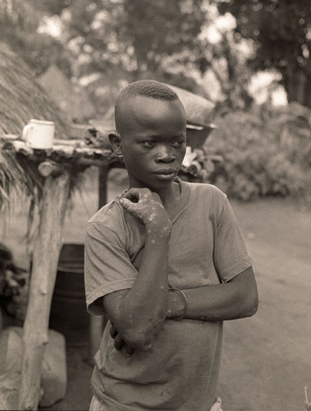 Victor Pamba, age 14, abducted by Lord Joseph Kony's LRA February 2, 2009.